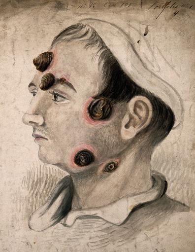 syfilis wiki nøgen grønlænder